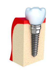 dental implant Chicago