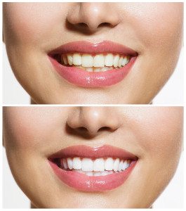 chicago cosmetic dentistry